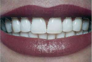 selection dientes