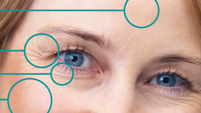 Signos de la edad en los ojos